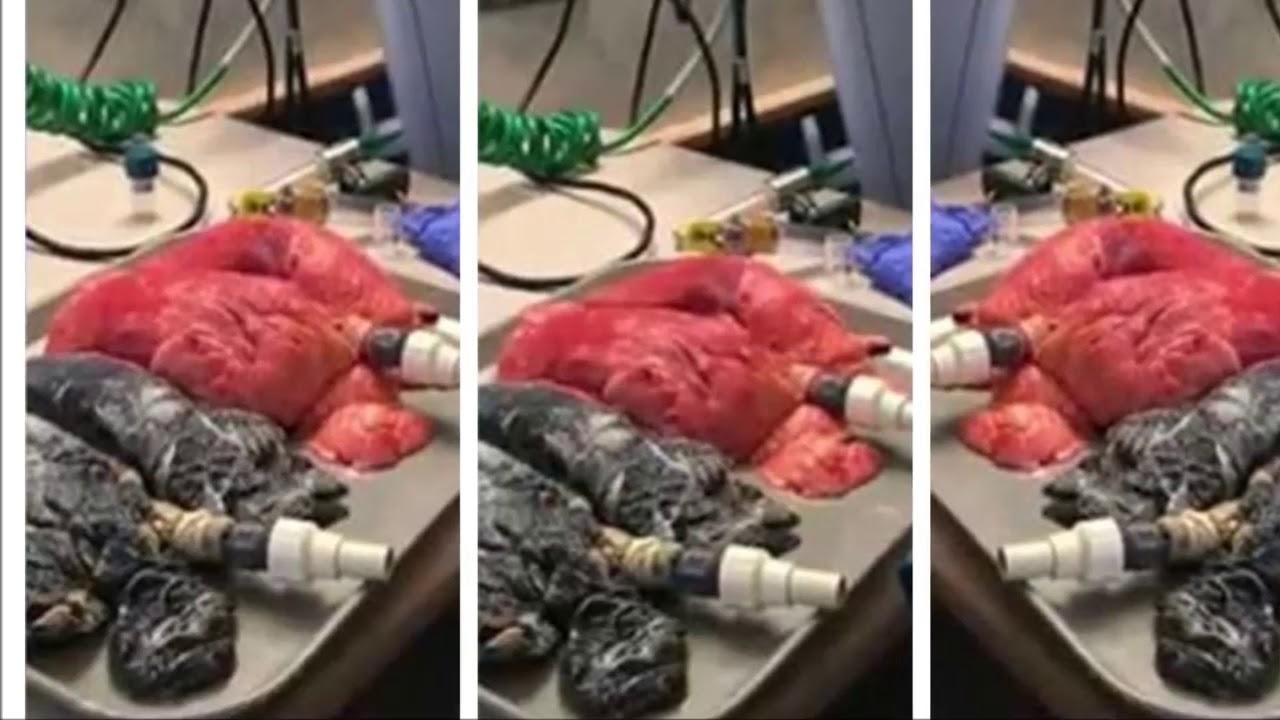 Pulmón enfermo contra pulmón sano: Las pruebas lo dicen todo...   Noticias de Buenaventura, Colombia y el Mundo