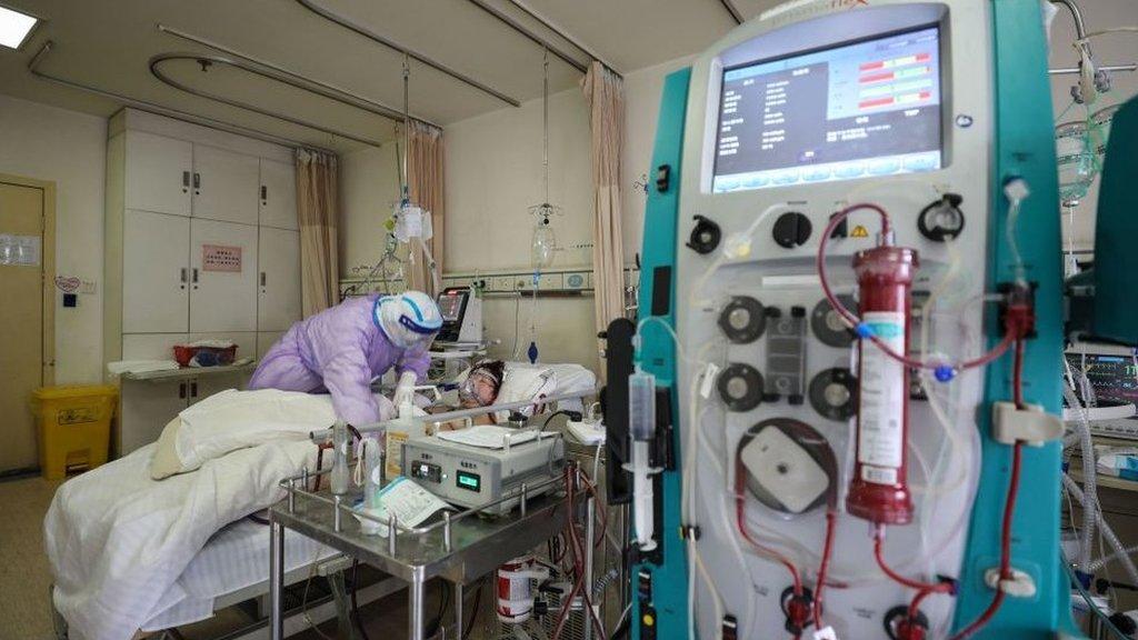 Un paciente de covid-19 conectado a una máquina de ECMO en China