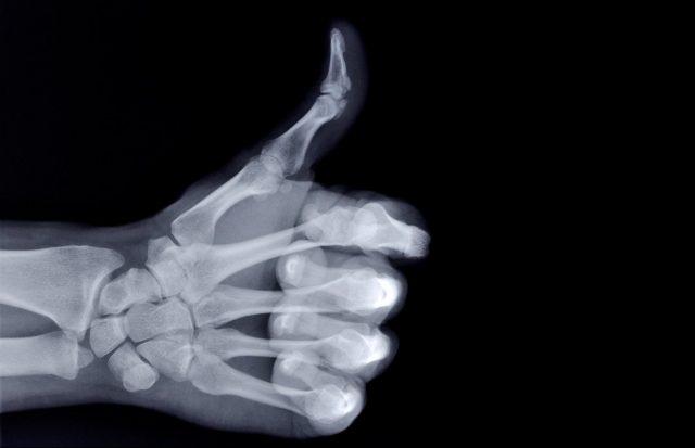 Esta nueva tecnología puede detectar rayos X con más eficiencia