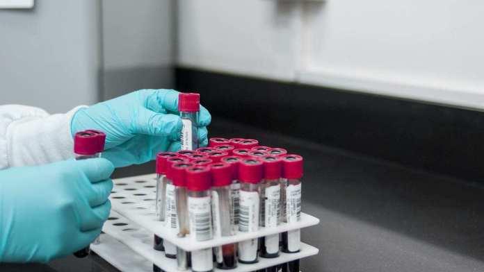 16 municipios del Huila sumaron nuevos contagios de coronavirus