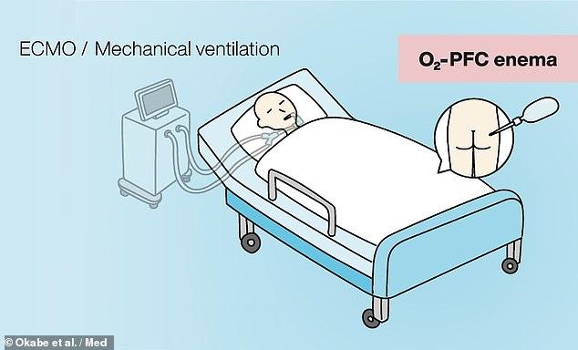 Los investigadores creen que la ventilación mecánica (izquierda) podría reemplazarse con ventilación líquida intestinal (derecha), en la que los pacientes recibirían un enema de perfluoroquímicos oxigenados.