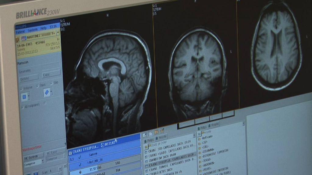 Tal vez el cerebro no es tan importante para dormir