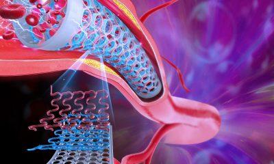 Sensor capaz de aplicarse a nanoescala o megaescala