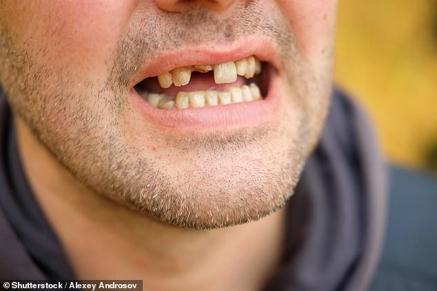 Investigadores de la Universidad de Nueva York descubrieron que la pérdida de dientes es un factor de riesgo tanto para la demencia como para el deterioro cognitivo, y con cada diente perdido, el riesgo aumenta (imagen de archivo)