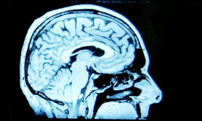 por qué es bueno para el cerebro