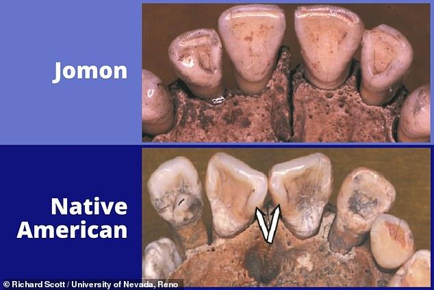 Contrariamente a la teoría popular, los antepasados de los nativos americanos no se originaron en Japón, según concluyó un estudio de la genética y los dientes humanos de hace 15.000 años.  En la imagen: ejemplos de dientes analizados en el estudio, que incluyó especímenes del antiguo pueblo cazador-recolector-pescador 'Jomon' de Japón (arriba) y nativos americanos (abajo).  Las flechas resaltan las crestas marginales que distinguen los 'incisivos en forma de pala' que son más comunes en las poblaciones nativas americanas.