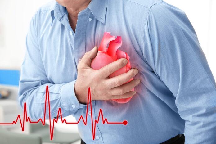 En Villavicencio el 30% de muertes naturales obedecen a problemas cardiovasculares - Noticias de Colombia